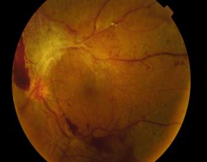 Retinopatía-diabética-retina