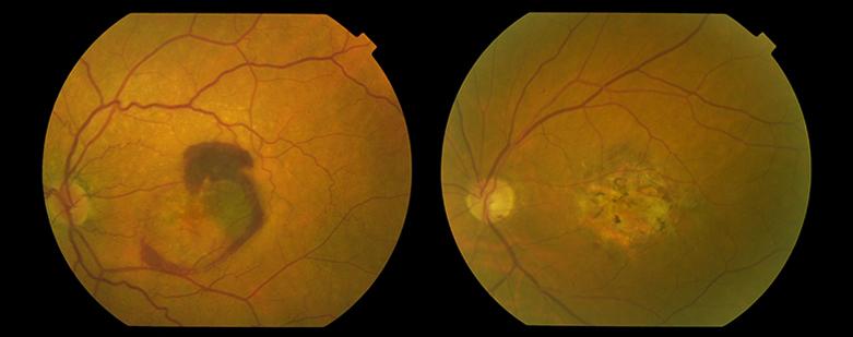 retina-medica-DMAE